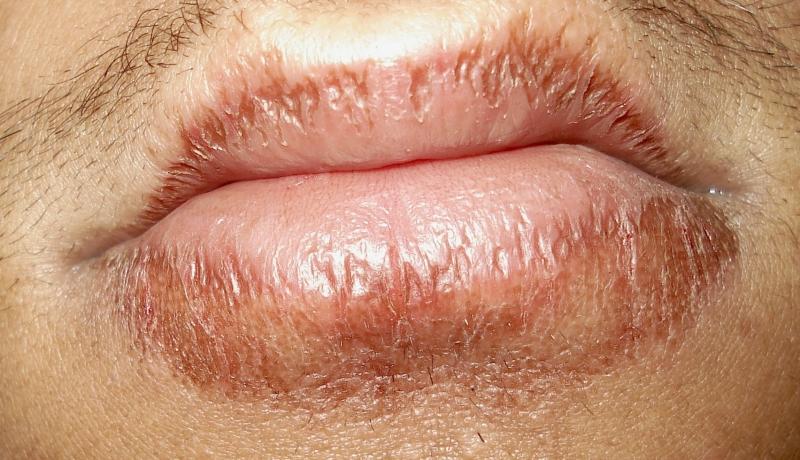 為何嘴唇乾不能用舌頭舔?看完之後你就知道有多嚴重了,別說我沒...