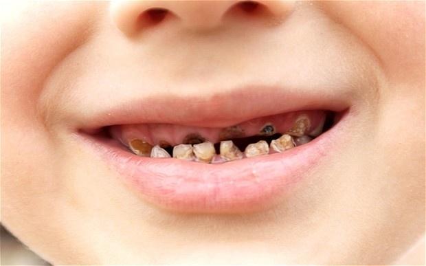吃對口香'糖'能預防蛀牙,歐洲三十年前就知道!...