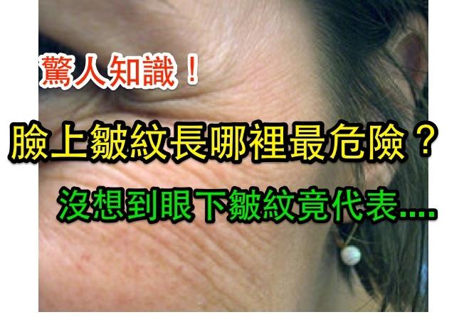 臉上皺紋長哪裡最危險?沒想到眼下皺紋竟代表.......