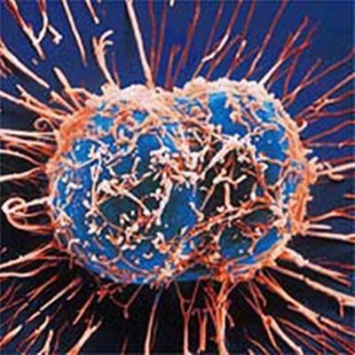 癌細胞變回正常細胞的秘訣,轉發救人無數!...