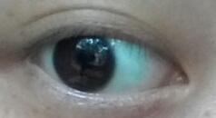 透過眼白顏色,竟然可以判斷是否得性病!!...