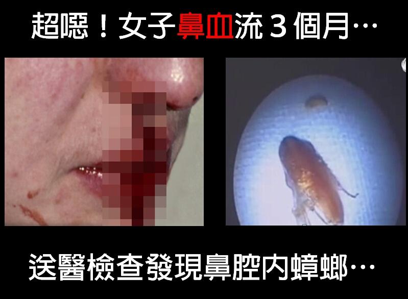 女子鼻血流3個月竟挖出一隻蟑螂!...