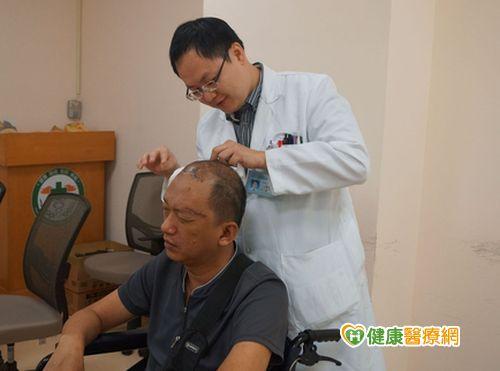 頭痛欲裂不可忽視可能是顱內血管瘤...