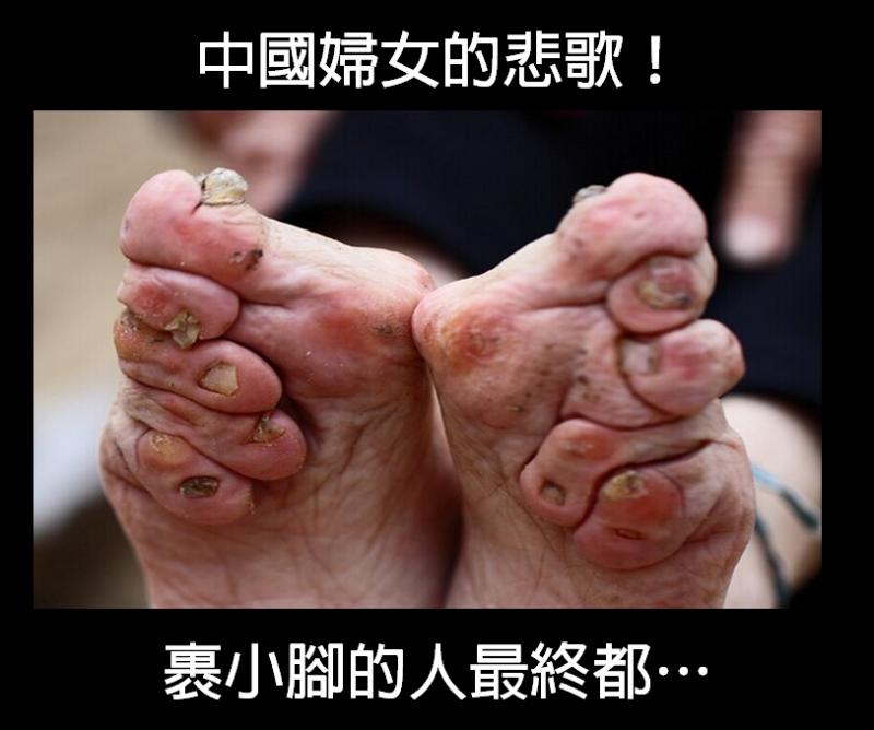 中國女人的悲歌!裹小腳的人最終......