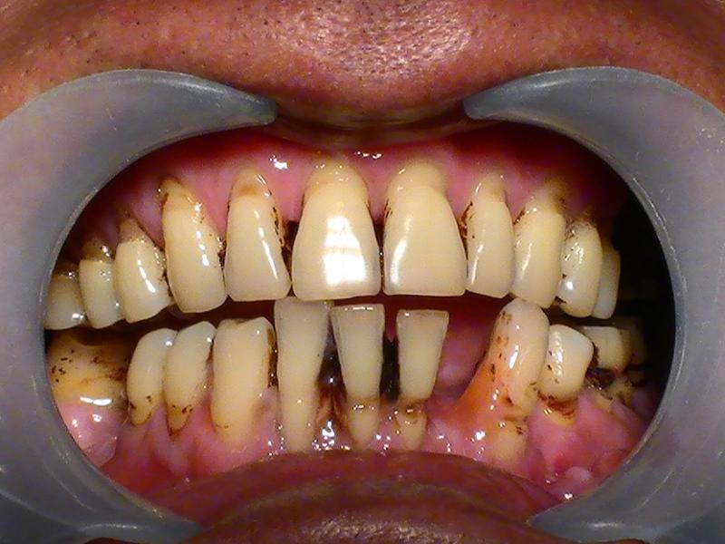 你知道牙周病可能發生在你身上嗎?不想滿口爛牙就要徹底了解!太...