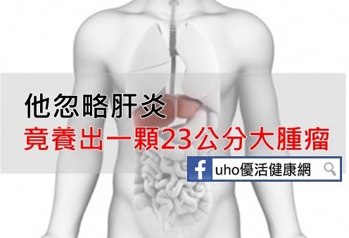 天啊!他忽略肝炎竟養出一顆23公分大腫瘤...