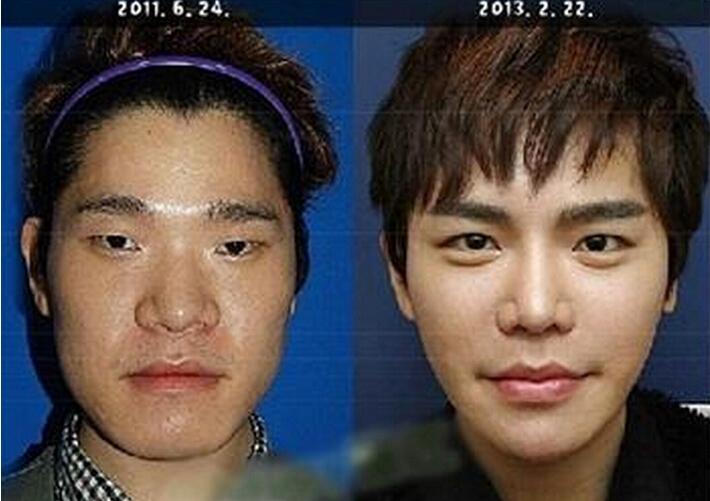 韓國人怎麼這麼愛整型,揭密8大整形手術保質期!(看完你還想整...