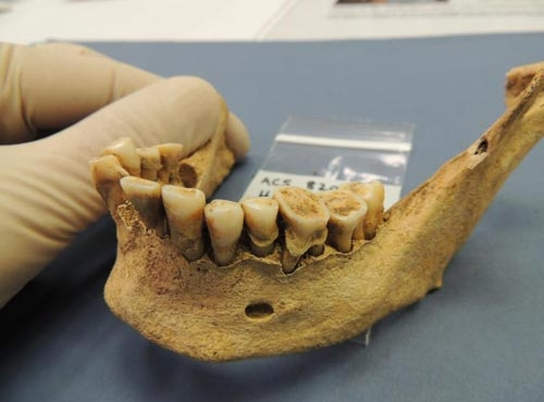 驚人事實:雖然沒有牙刷,但古人的牙齒比現代人更健康!...