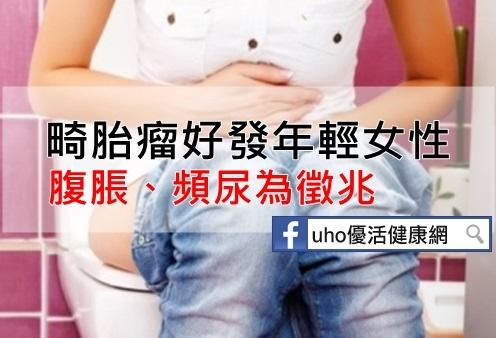 畸胎瘤好發年輕女性腹脹、頻尿為徵兆...
