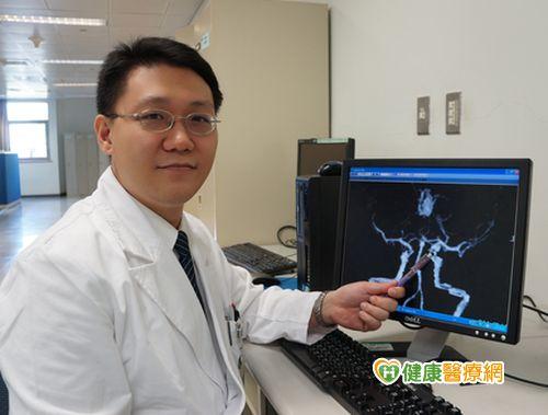 腦動脈瘤破裂誤當頭痛婦人險送命...