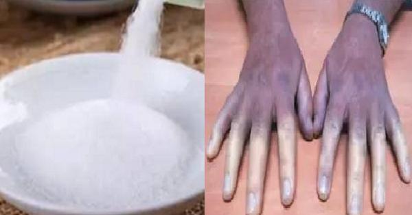 誤食「這種鹽」,一家三口都中毒!夏天到了,食物變質也會產生....