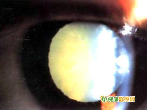 糖尿病患失明機率高每年應眼底檢查...