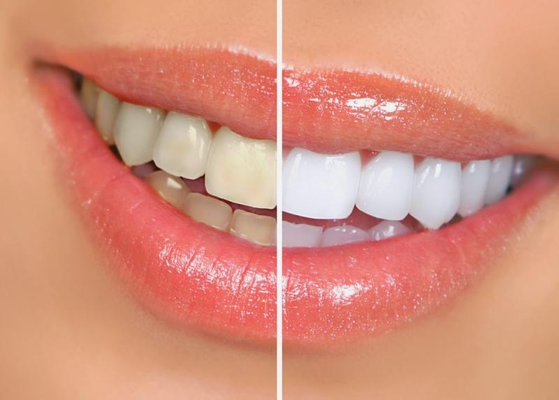 無需洗牙....6招教你,5分鐘消除牙垢!太棒了,看完可以分...