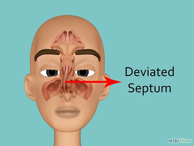 如何快速改善鼻塞?幫您成功打敗鼻竇炎及鼻過敏~~...