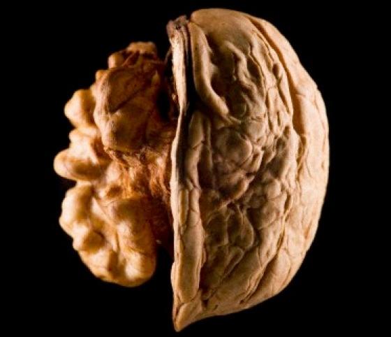 學界找到阿茲海默症元凶「吃腦補腦」也不算完全迷信|健康達人網...