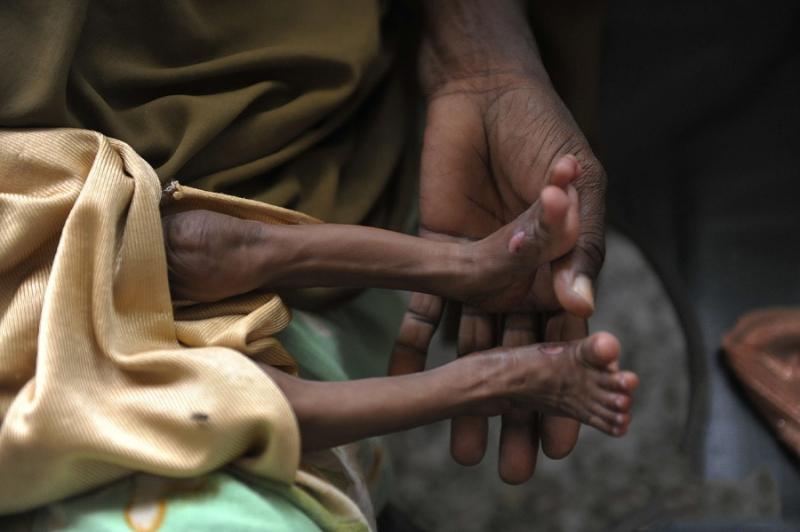 72小時不喝水,身體會怎樣?世上98%的人類都不知道有這麼慘...