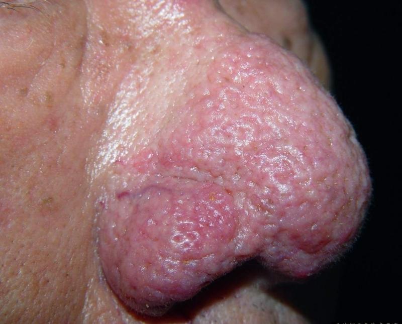 「紅鼻頭」怎麼回事?這種疾病男女老少發病率均高!別忽略!請一...