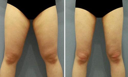 每天三分鐘就夠了!消除大腿橘皮的秘密按摩法!...