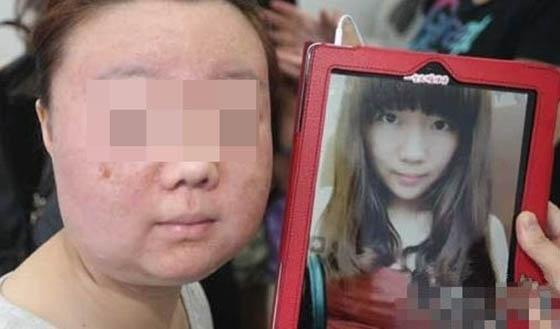 美容師不會告訴你的,必須要知道的事。(曾經你是在美容還是毀容...