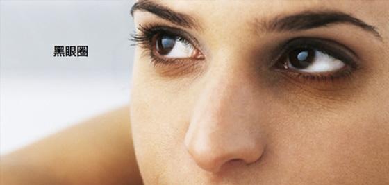 黑眼圈竟然不是睡眠不足引起~快速消除眼皮浮腫方法!...