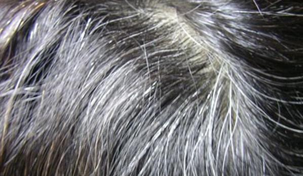 每天吃一碗;你的白頭髮不見了,給爸媽留著,染髮劑傷害大,別用...