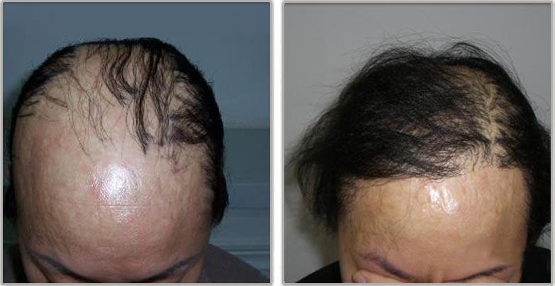 太可怕了!女人必知!90%的女人都不知道掉頭髮的根本原因是‧...