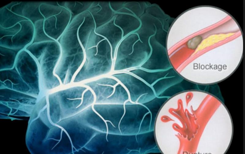 如何預防、檢測是否中風了!重要資訊,家裡有長輩更要注意!分享...