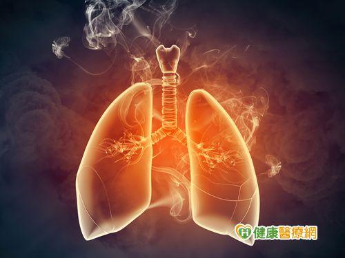 不吸菸就安全?醫:不少肺癌病患無吸菸...