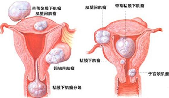 子宮肌瘤、卵巢囊腫到底是怎麼回事!看完我明白了女人一定要知道...