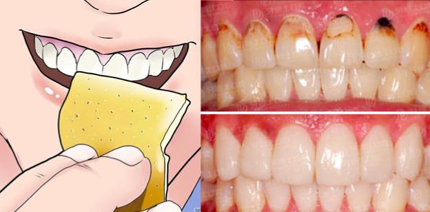 不用洗牙!六個方法就能去除牙菌斑!再也不怕洗牙痛痛了...