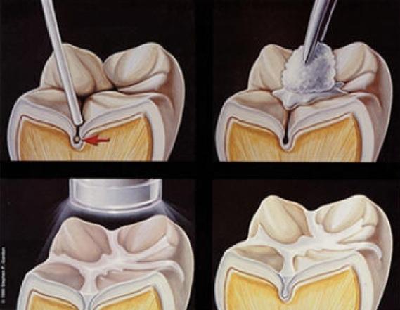 影響一輩子的事,記得為孩子的牙齒做窩溝封閉!...