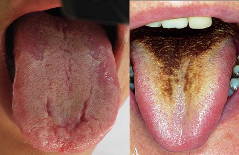 「舌頭」上有兩條線代表的意思是?發黑、苔斑原來代表健康出事了...