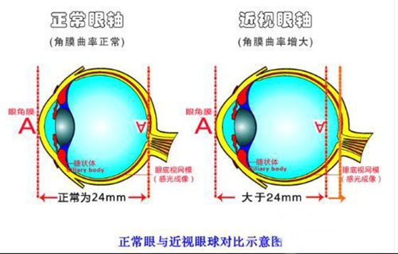 太神奇了!不用再帶眼鏡了真正根治高度近視眼的方法...