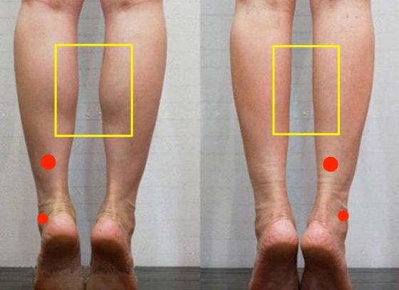 「激瘦小腿」只要按這些穴位就辦到!日本懶人瘦腿法,一週明顯小...