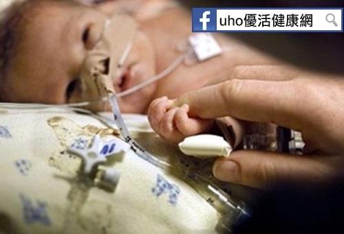 女嬰吐奶、腹脹竟是30公分小腸壞死所致...