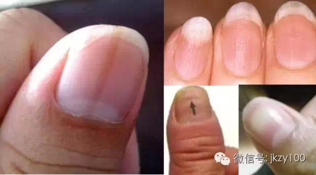 指甲上的豎線表示什麼病?尤其是有白點的一定要注意阿!!!...