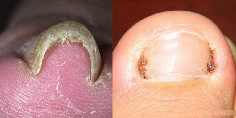 不要腳趾「凍甲」(台語),切記得剪這樣的指甲形狀!(內含凍甲...