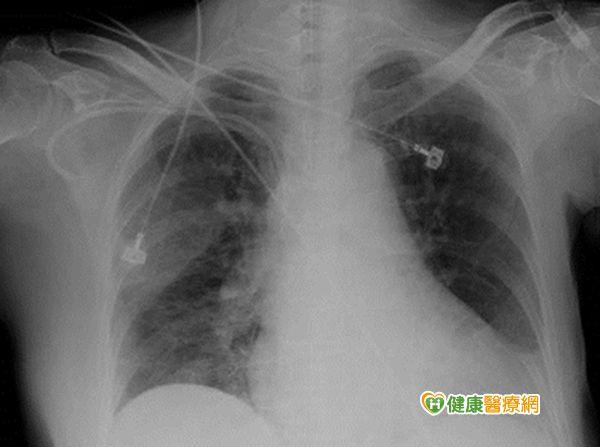 癌症病患注意!肺栓塞易致命...