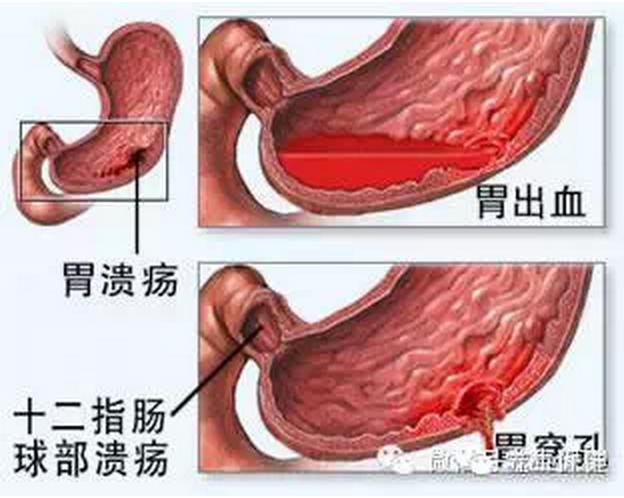 如果你身邊有人胃不好,請轉給他們看看(功效很不錯!)...
