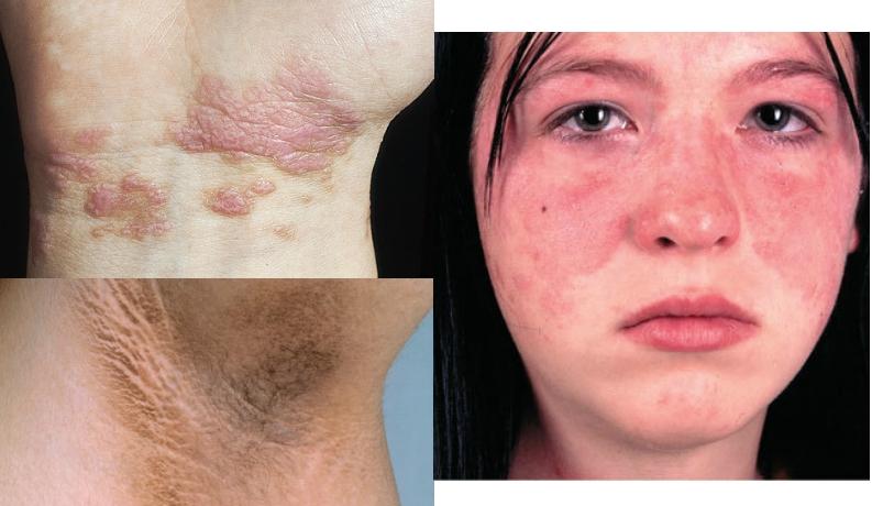 小心!如果皮膚出現這些癥狀,這是癌變前兆......