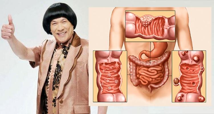 當年豬哥亮就因血便救了他,警覺自己罹患「大腸癌」!大腸癌的早...
