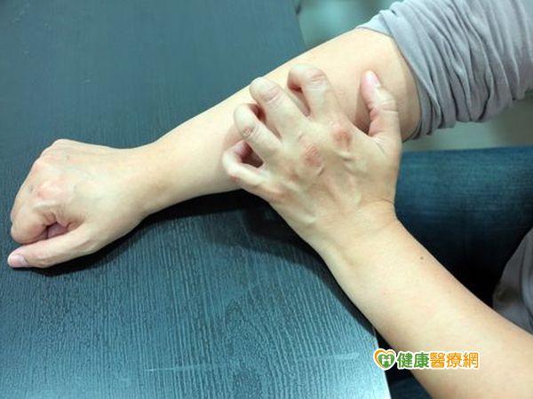 吃補養生變「癢身」皮膚搔癢增3成...