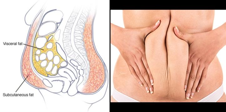 警告!「內臟脂肪」對健康危害真的大,簡單用「腹式呼吸」移除肥...