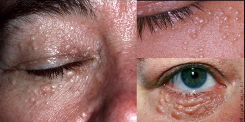 眼睛周圍長顆粒..居然只要靠這些東西就能解決!華人皮膚的通病...
