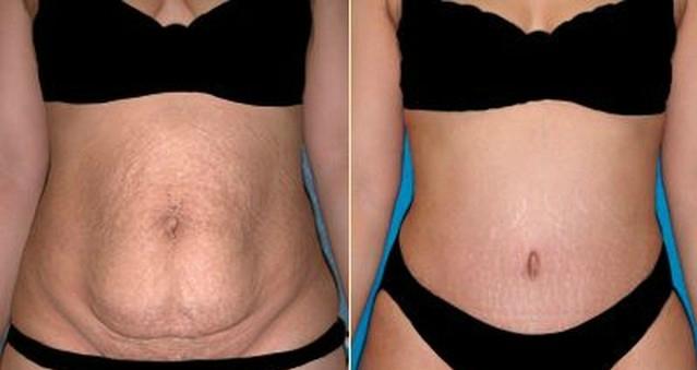 超有效!永不復胖!瘦肚子最快最有效的方法!一周瘦回來!...