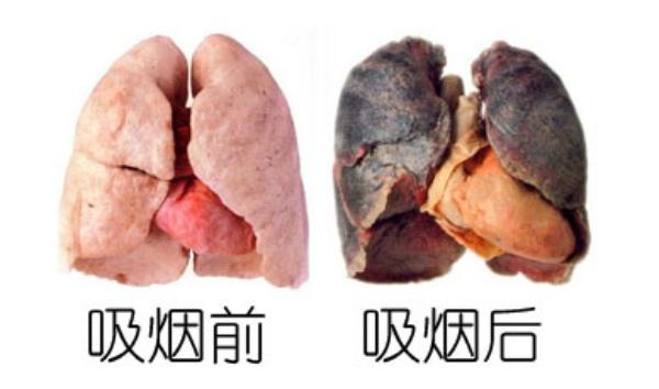 抽煙吃什麼清肺?長期吸菸或吸二手菸的家庭主婦都要看!...