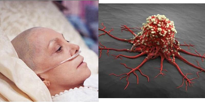 你離癌症有多遠?癌症早期是可以控制的...這16個癌症信號一...