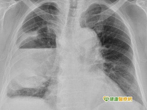 男子輕忽小感冒竟演變為嚴重肺膿瘍...