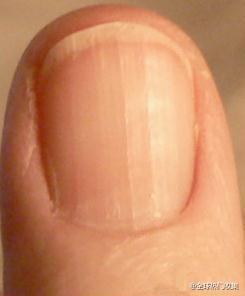 指甲上一條一條的人要注意囉!...