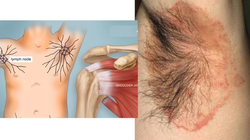 刮腋毛的迷思大公開!!沒想到體毛旺盛的原因和「卵巢」、「乳腺...